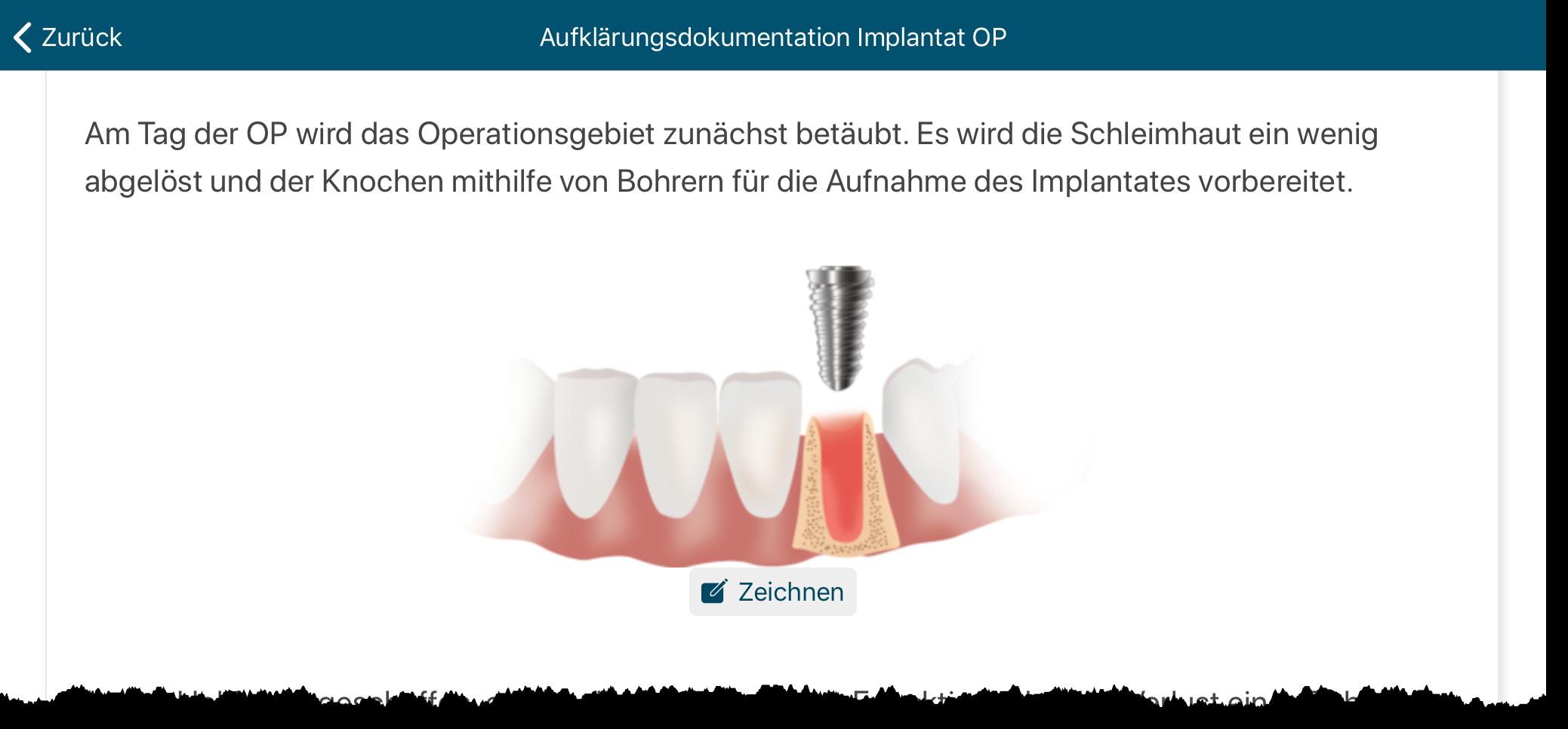 Athena-Aufklaerungsboegen-Implant-OP-Malen