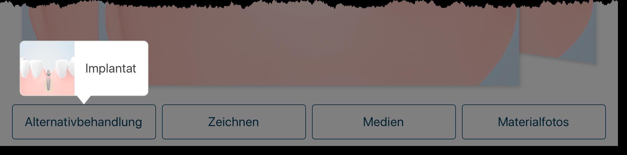 Athena-Beratung-Alternativbehandlung-Implantat